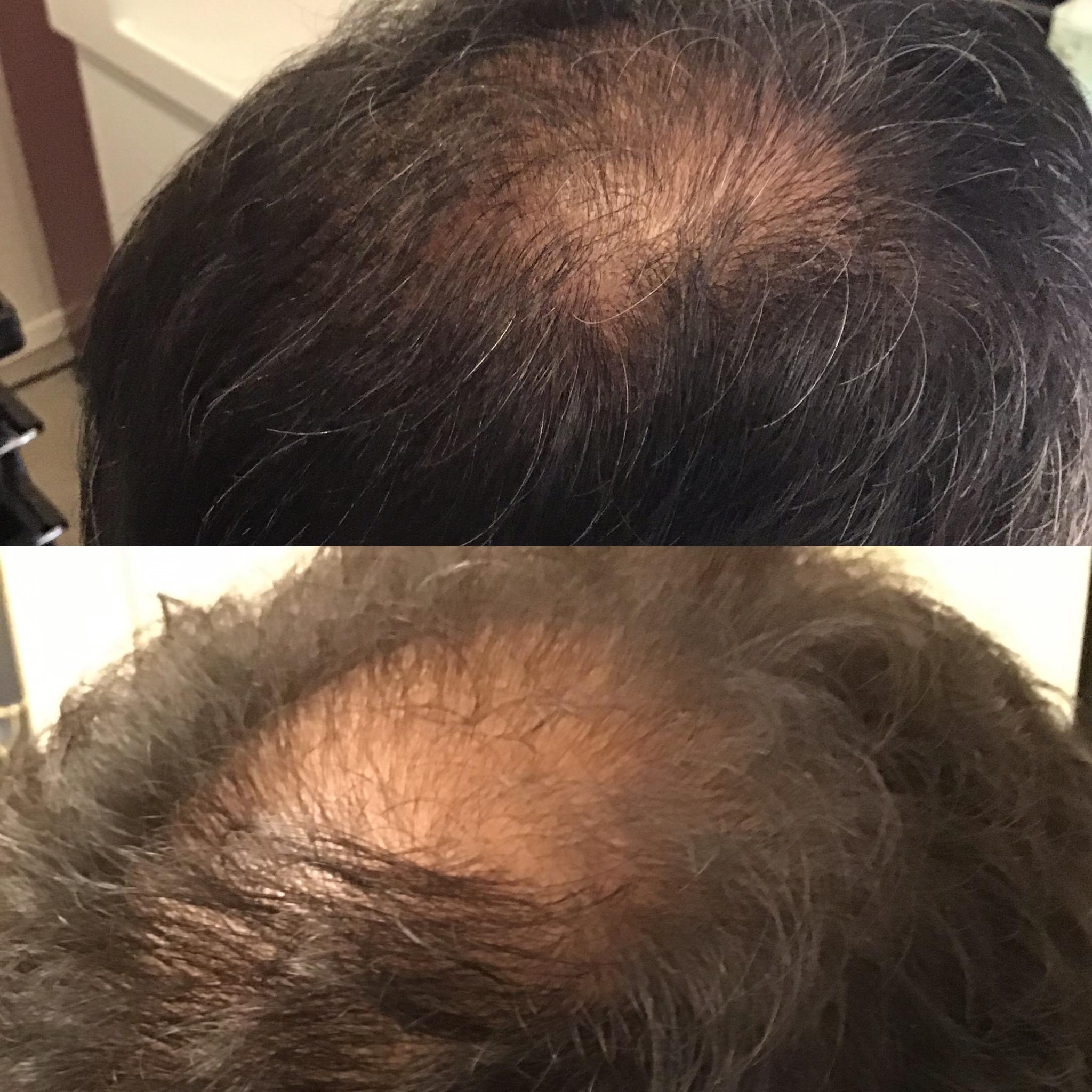 男性の抜け毛|育毛発毛専門店アクティヘアクリニック安城