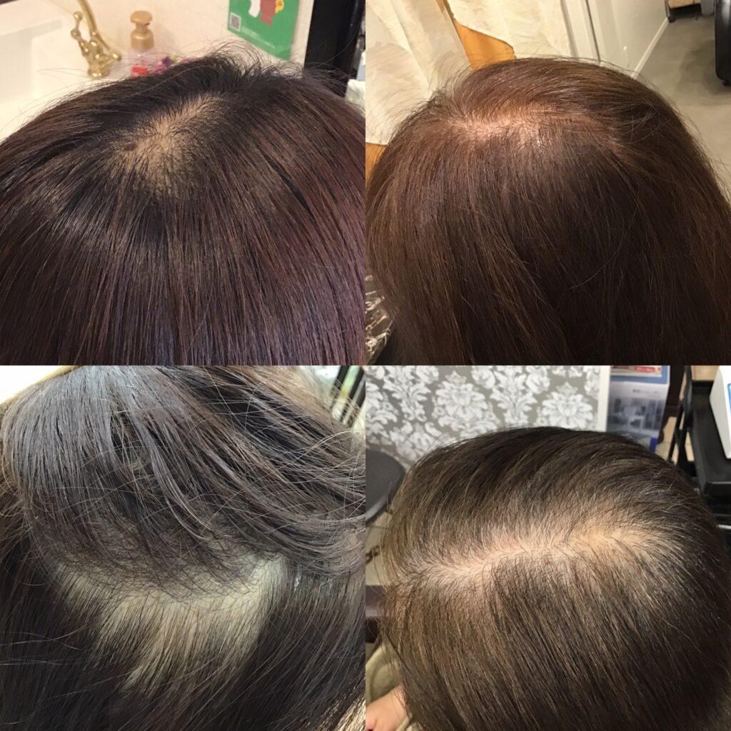 女性の抜け毛 育毛発毛専門店アクティヘアクリニック安城