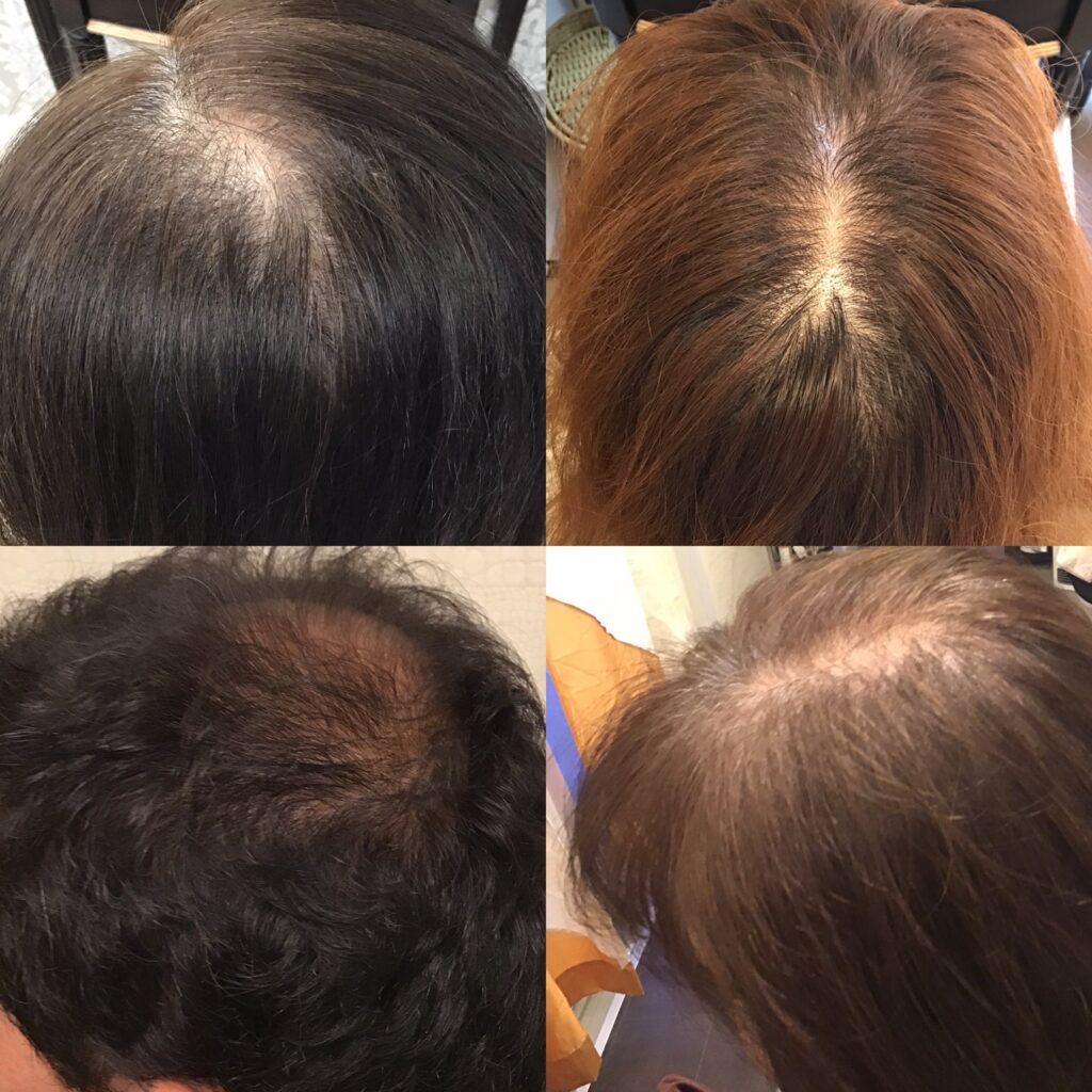 男性の薄毛・女性の薄毛 育毛発毛専門店アクティヘアクリニック安城